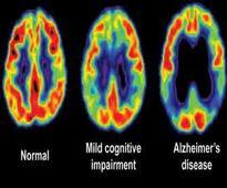 Bones can tell of brain degeneration in Alzheimer's
